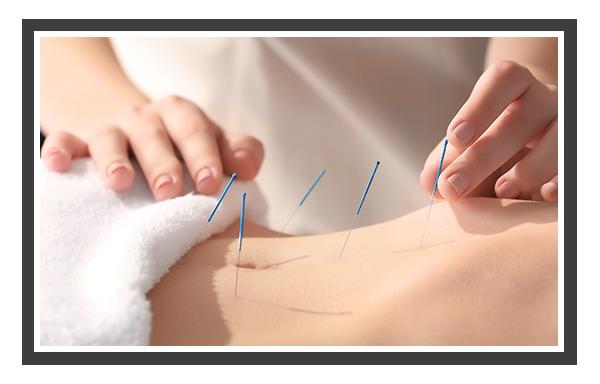 Edmonton Acupuncture Services